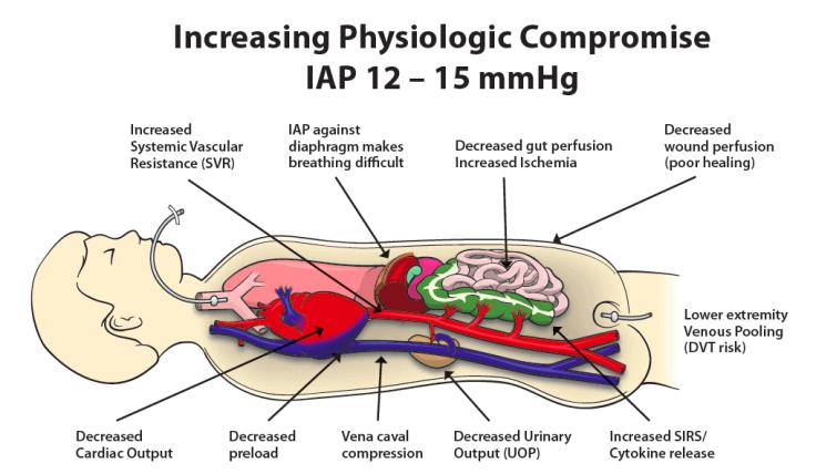 IAP 12-15