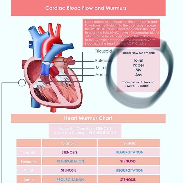 Cardiuac Murmurs