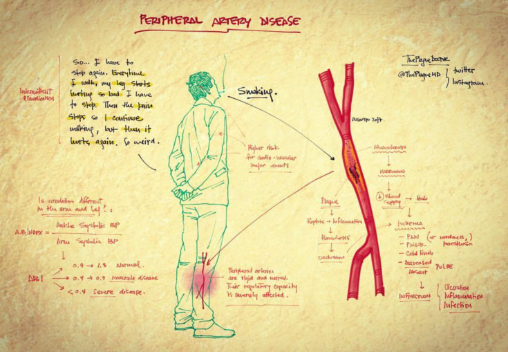 Plague - Peripheral Artery Disease